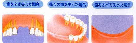 歯を2本失った場合多くの歯を失った場合歯をすべて失った場合
